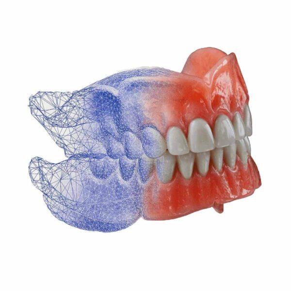 digital-denture
